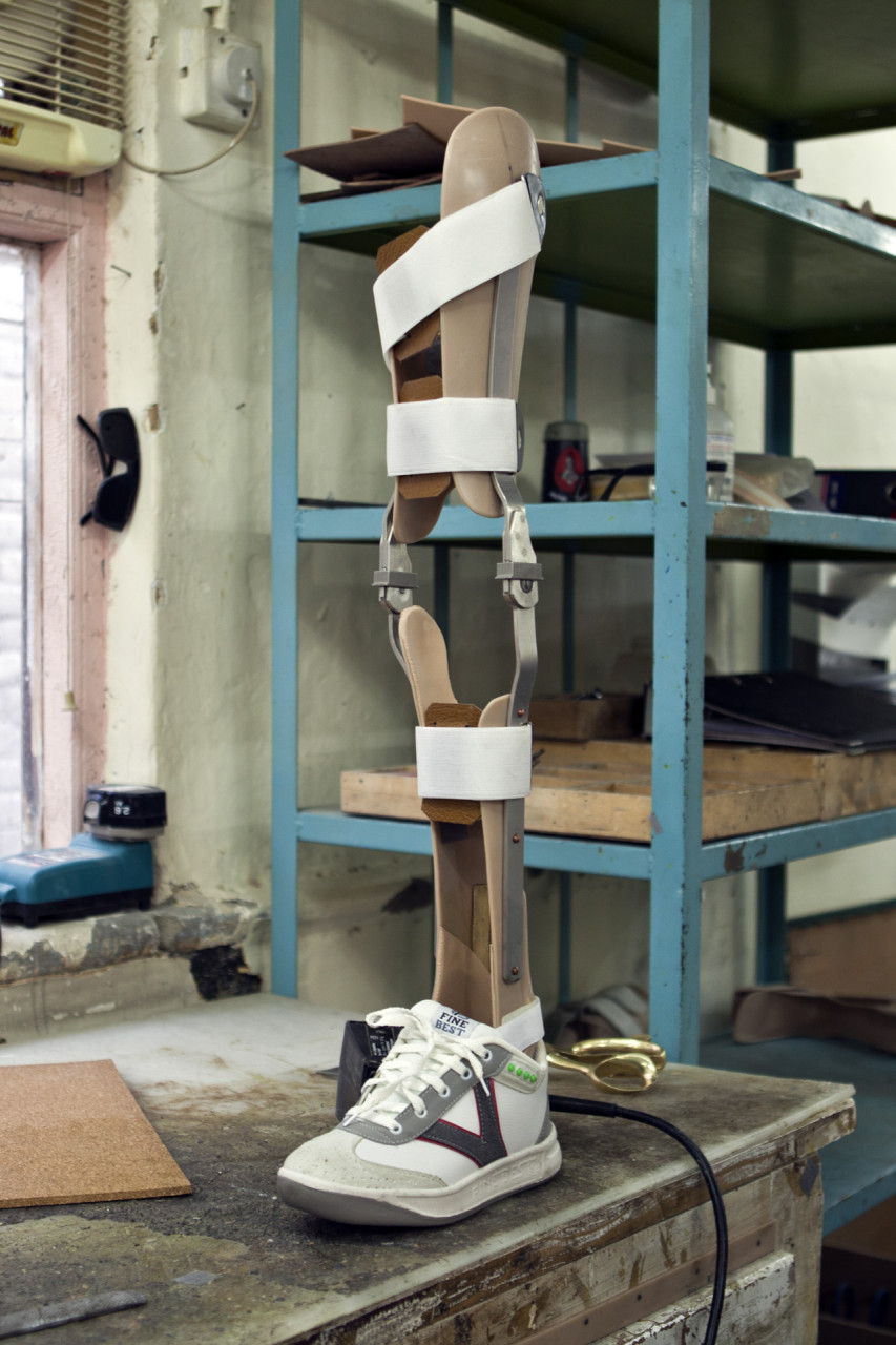 quetta_prostheticleg